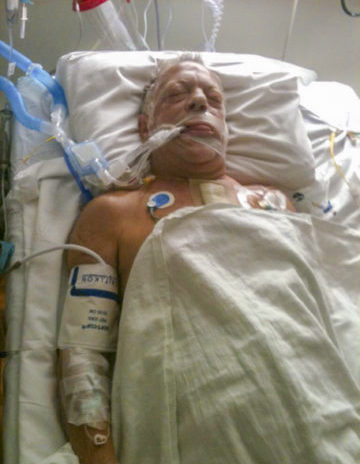 Client John Zoleo before picture lying in hospital bed after heart bypass surgery