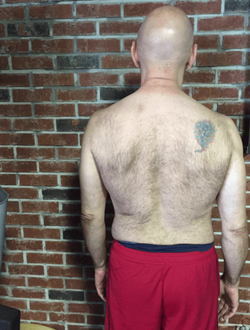 Client Wayne LeBlanc before picture of his back